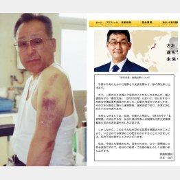中村氏の左腕に残る痛々しいアザ(左・提供写真)